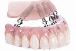 10impianti-dentali-studio-guidi-ancona