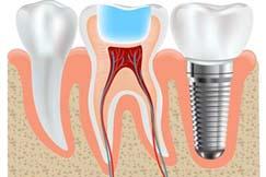 1impianti-dentali-studio-guidi-ancona