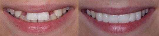4impianti-dentali-studio-guidi-ancona