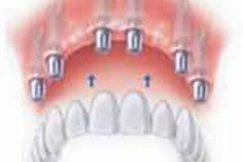 6impianti-dentali-studio-guidi-ancona