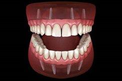 8impianti-dentali-studio-guidi-ancona