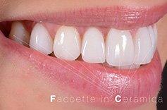 andriano-guidi-estetica-dentale