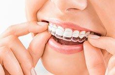 andriano-guidi-ortodonzia