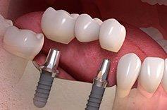 andriano-guidi-protesi-dentali-fisse