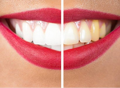 guidi-odontoiatriaigiene-sbiancamento